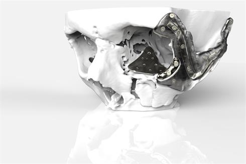 Cranio-facial placement guides and implants